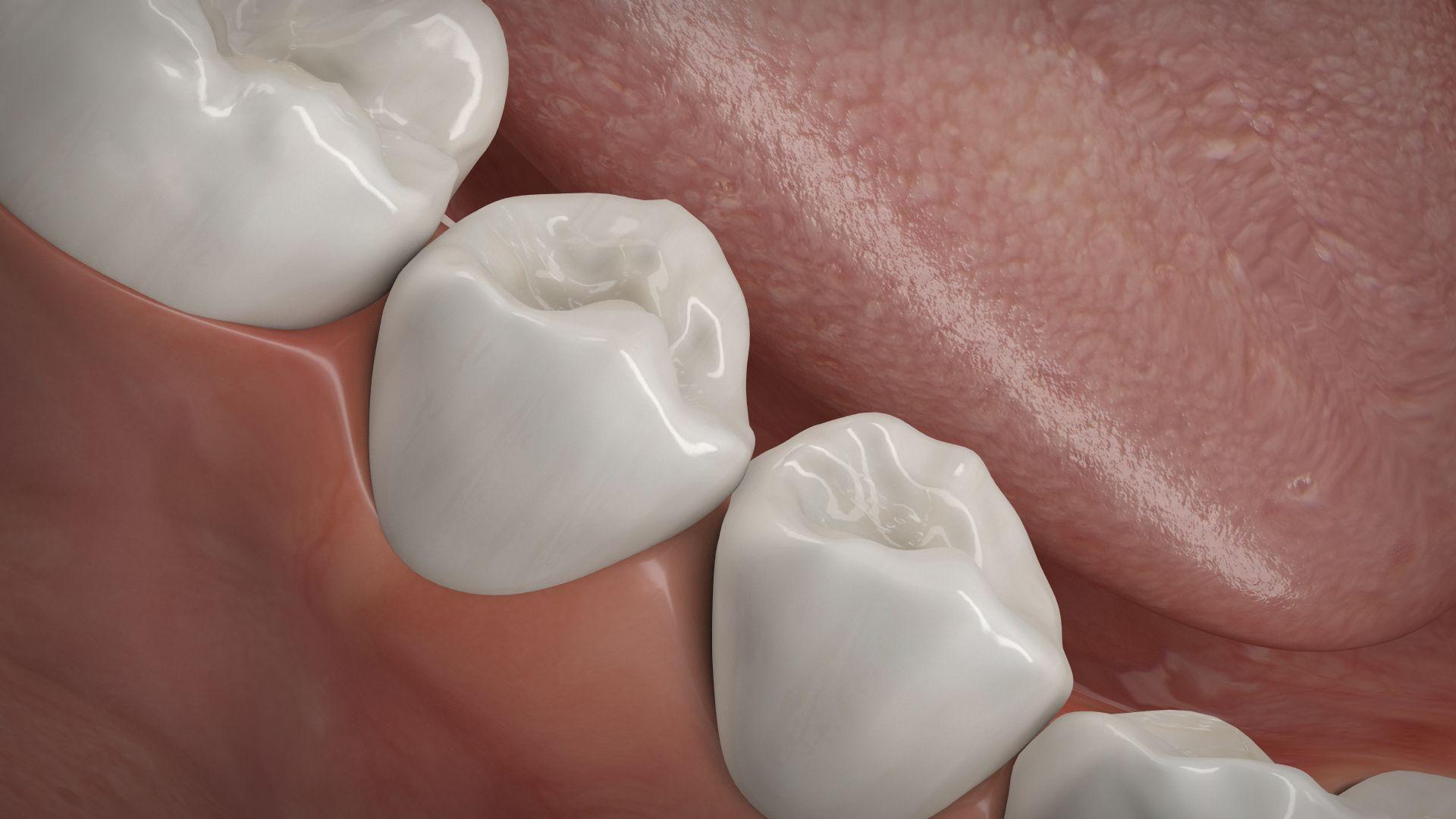 Knochenaufbau Zahnverlust, Dr. Tabatabaie & Kollegen