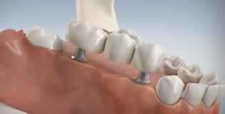 3D-Implantate Zahnarzt Düsseldorf, Dr. Tabatabaie & Kollegen